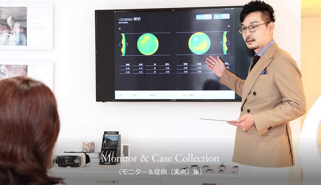 Monitor & Case Collection(モニター&症例(実例)集)